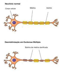 Tudo sobre células-tronco e esclerose múltipla