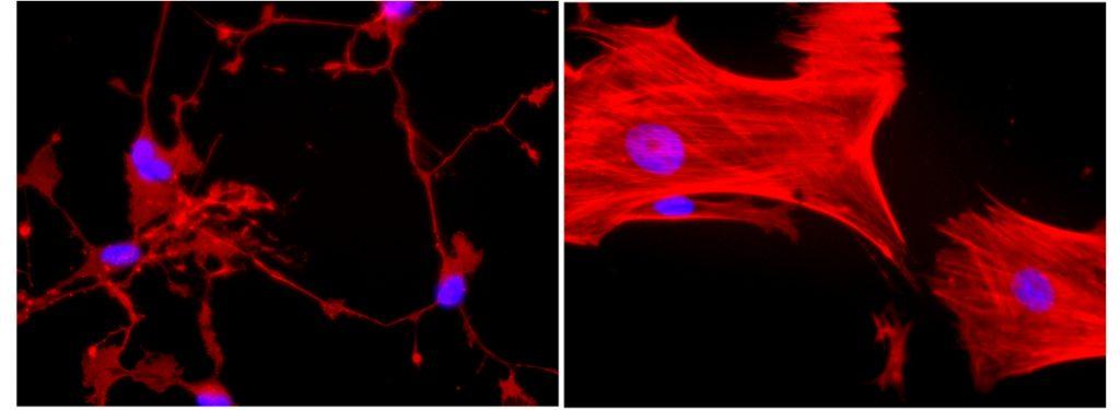 Estudo aponta que células-tronco de pacientes com autismo apresentam desregulação de mecanismo importante para formação de neurônios