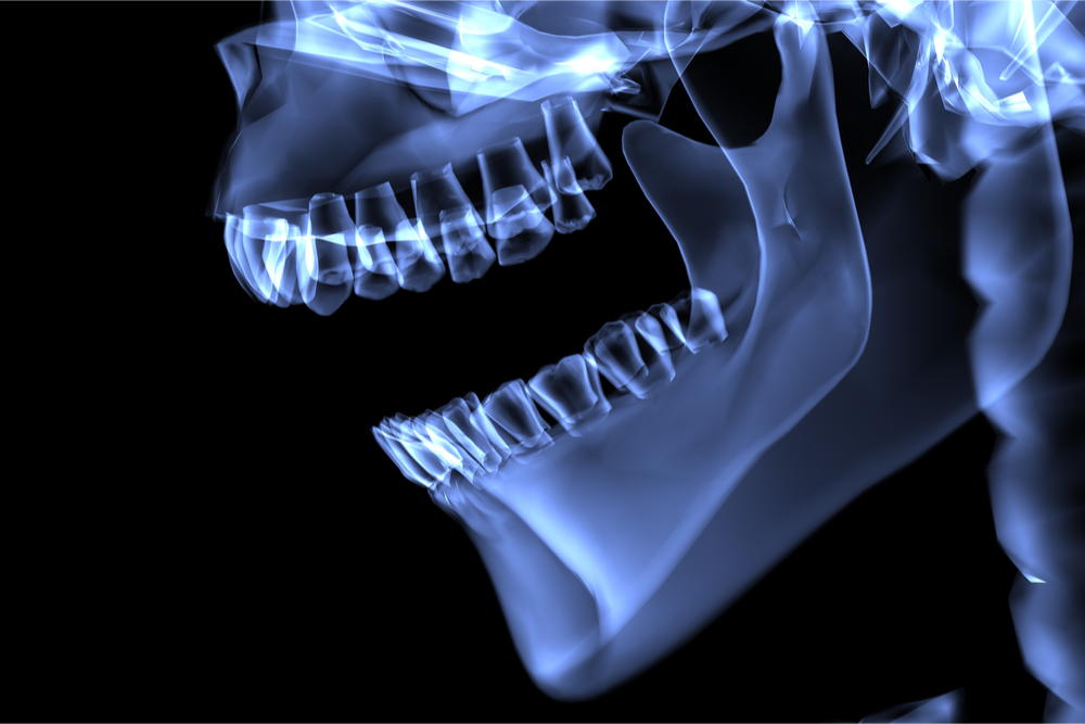 Grupo brasileiro usa células-tronco mesenquimais para regenerar a articulação temporomandibular