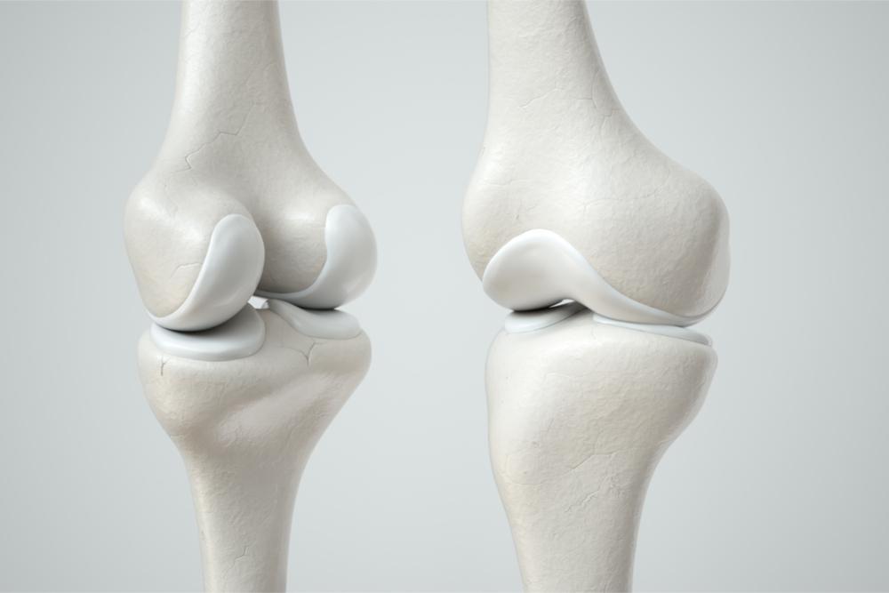 Novo tipo de células-tronco pode ser a chave para melhores tratamentos de doenças da cartilagem