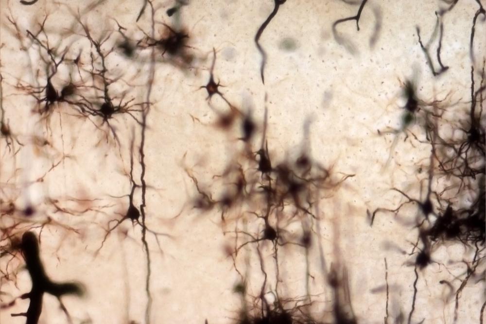 Células-tronco afetadas pelo enrijecimento da massa cerebral causado pelo envelhecimento são rejuvenescidas no cérebro de camundongos