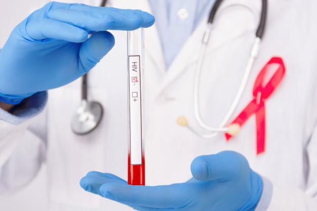 Segundo paciente com HIV tratado por transplante de células-tronco é considerado curado